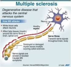 Writing Topic on Multiple Sclerosis Nursing