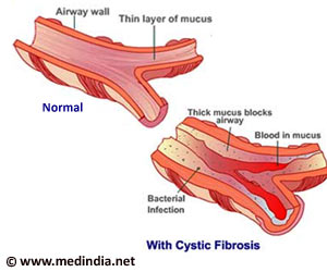 "cystic fibrosis research paper thesis The following paper will examine cystic fibrosis through looking at what is known about the disease in relationship  (""cystic fibrosis research paper example."