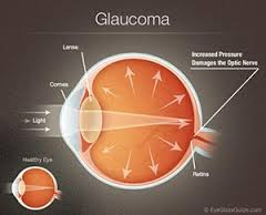 Writing Topic on Glaucoma Nursing