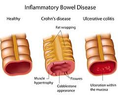 Writing Topic on Inflammatory Bowel Disease Nursing